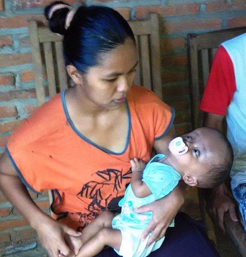 Bayi Penderita Hidrocepalus Belum Mendapat Pengobatan Maksimal